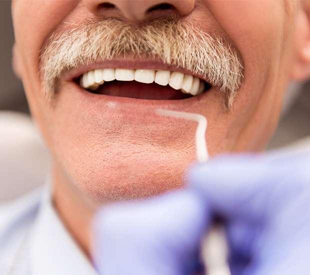 Silverdale Adjusting to New Dentures
