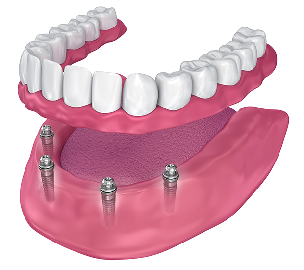 Silverdale All-on-4 Implants