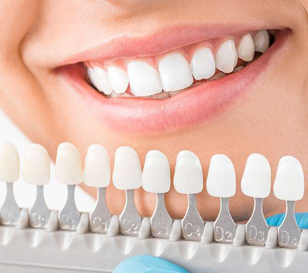Silverdale Cosmetic Dentist