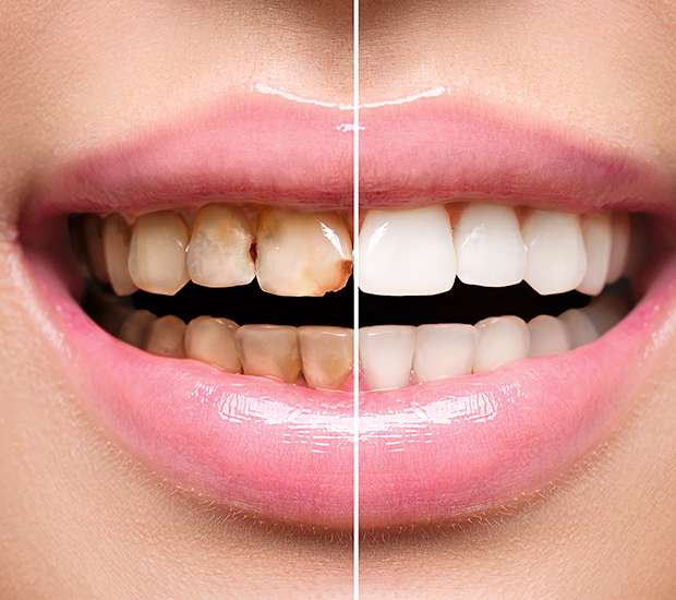 Silverdale Dental Implant Restoration