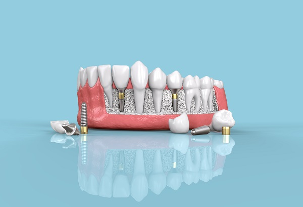 Can You Get Dental Implants For More Than One Missing Tooth?