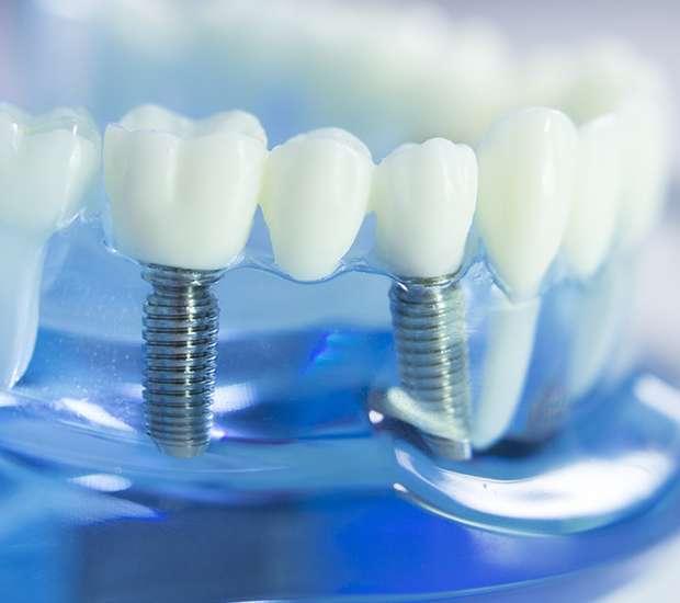 Silverdale Dental Implants