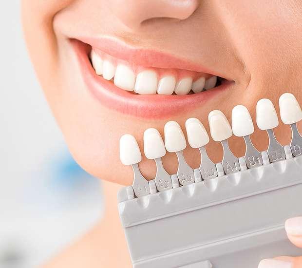 Silverdale Dental Veneers and Dental Laminates