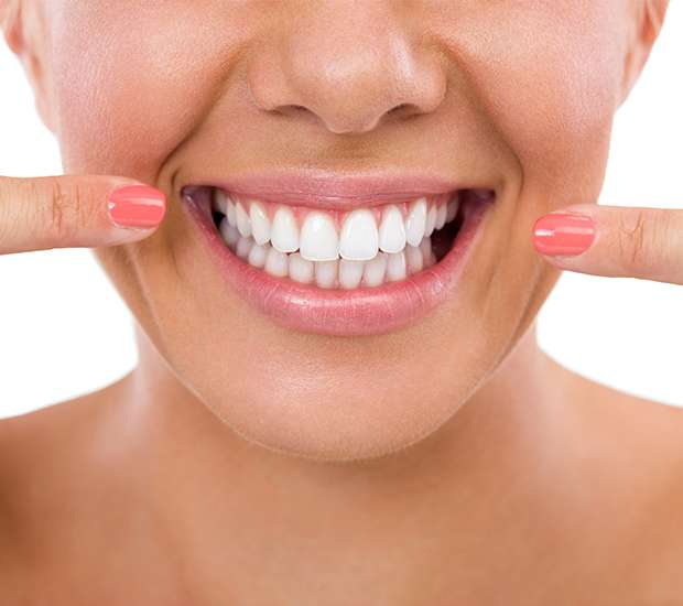 Silverdale What Is Gum Contouring & Reshaping