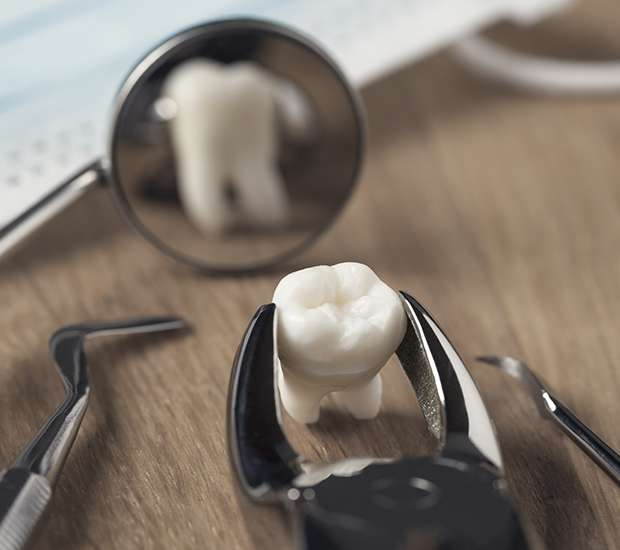 Silverdale When Is a Tooth Extraction Necessary